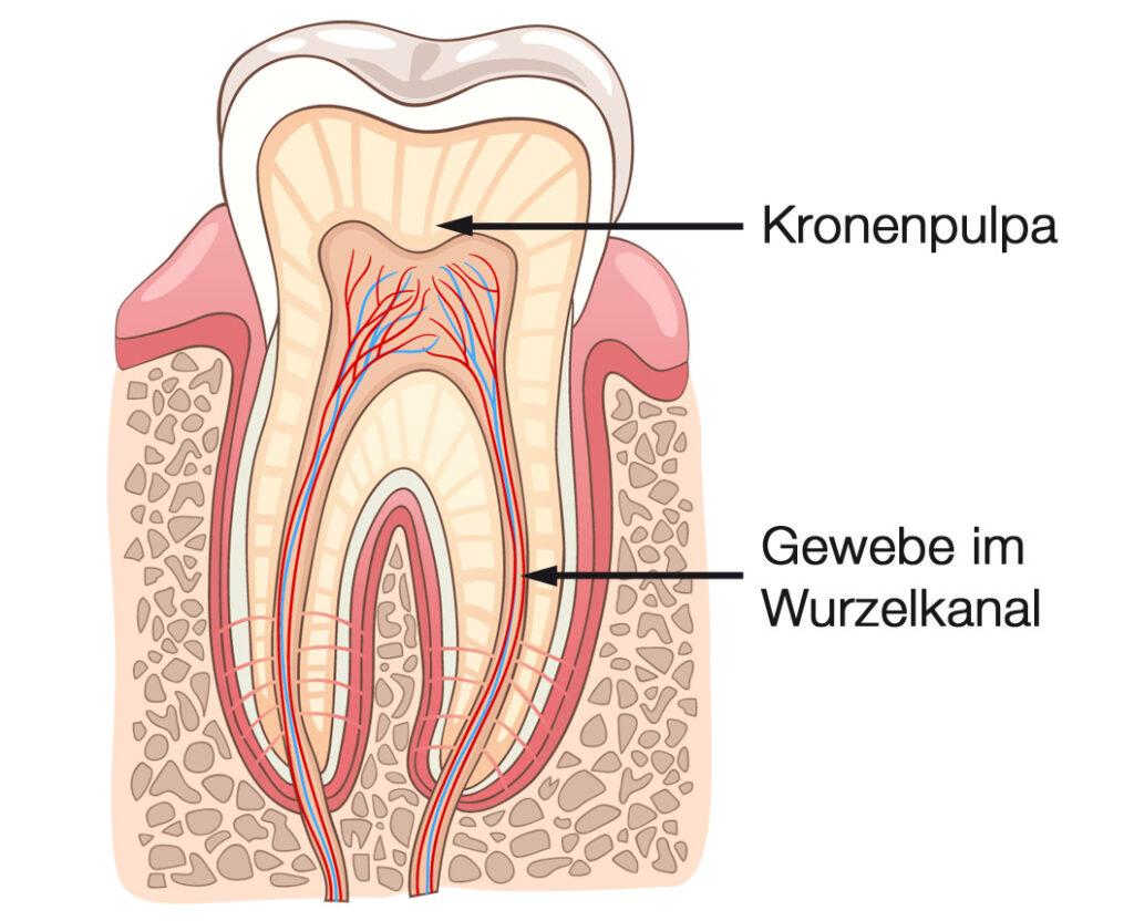 Wurzelbehandlung, Endodontie - Stephan Hardt - Zahnarzt in Karlsruhe