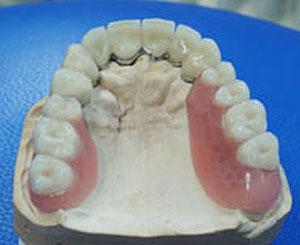 Zahnersatz abnehmbare Prothese