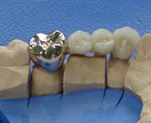 Festsitzender Zahnersatz - Zahnarztpraxis Stephan Hardt in Karlsruhe